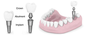 Single tooth replacement implants diagram