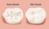 Preventative sealants