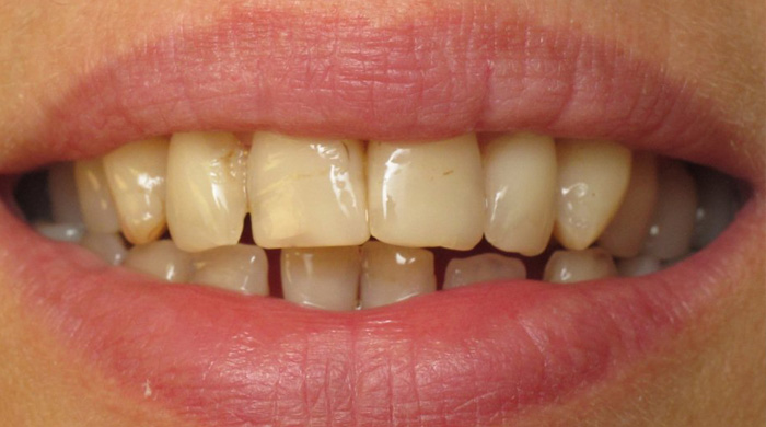 1. Stained or Discolored Teeth